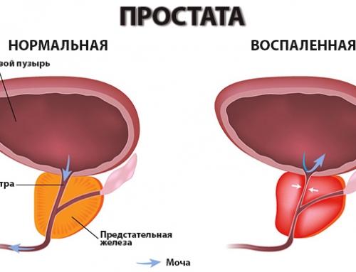 Простатит – диагностика и лечение
