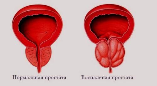 импортные лекарства от простатита список